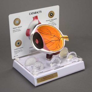 Cataract Eye Model-0