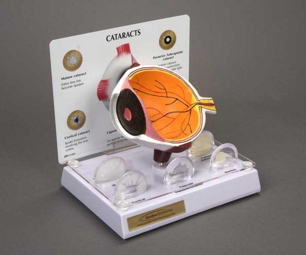 Cataract Eye Model-0