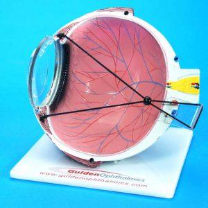 Lasik Eye Model-0