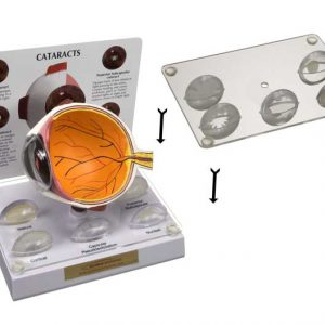 Lens Stabilizer for Cataract and IOL Models-0