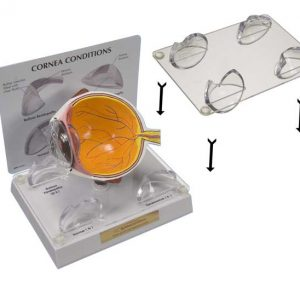 Lens Stabilizer for Cornea Model-0