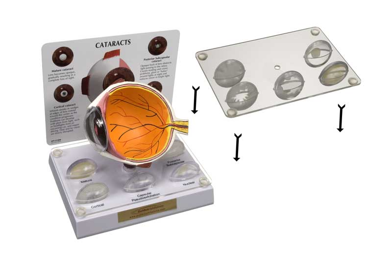 Cataract-Eye-model-retro