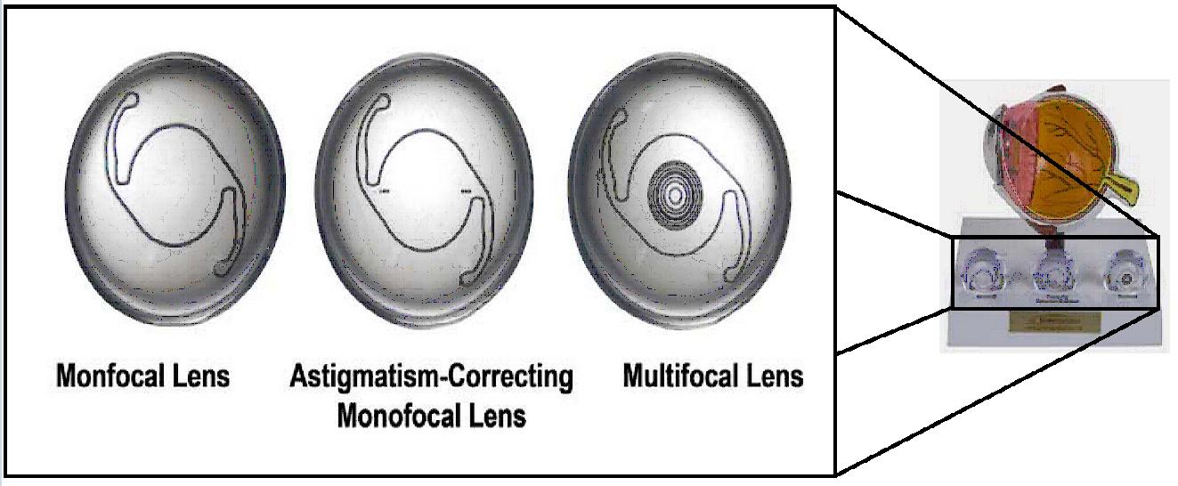 IOL Lenses