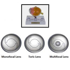 Premium IOL Options Lens Set-0