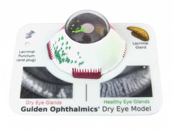 Dry Eye Model-0